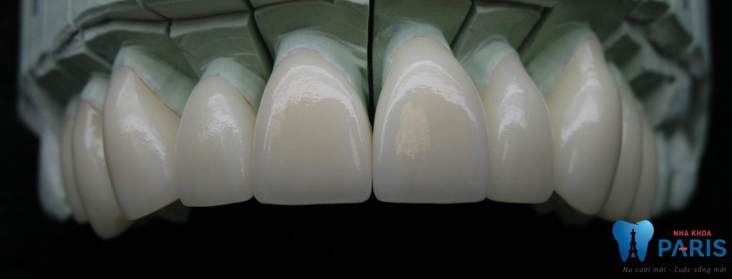 Hàm răng đều đẹp vs công nghệ laser tech hiện dại