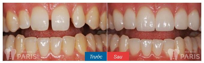 """Trám răng thưa thẩm mỹ - Phục hình răng """"ĐẸP KHÍT"""" Bền Lâu 5"""