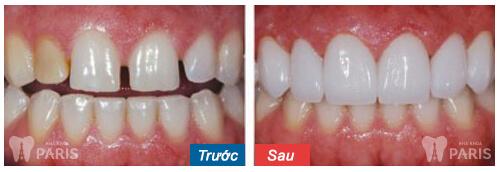 """Trám răng thưa thẩm mỹ - Phục hình răng """"ĐẸP KHÍT"""" Bền Lâu 4"""