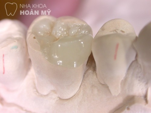 Trám răng bị bong tróc - nguyên nhân và cách điều trị? 1