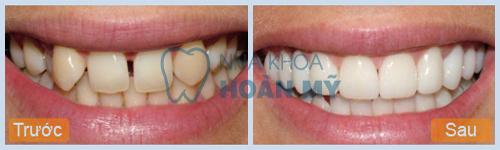 Trám răng cửa giữ được bao lâu? Sử dụng được bao lâu bạn biết chưa 1