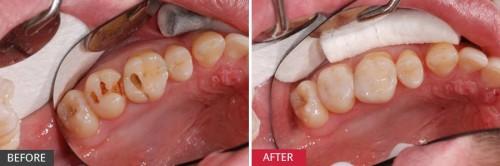 Sau trám răng uống nước đá có được không? 5