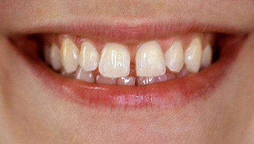 Có mẹo chữa răng thưa nào tại nhà không?