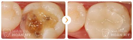 Nguyên nhân bị nhức của răng sâu và giải pháp ?