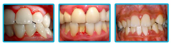 Cách chữa nhức răng hiệu quả