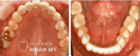 Hiện nay giá hàn răng tại nha khoa Hoàn Mỹ là bao nhiêu ?