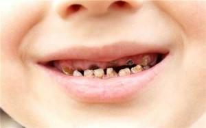 Có nên đi trám răng không?THỜI ĐIỂM hàn răng thích hợp1