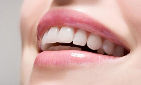 Bí quyết để có một hàm răng đẹp tự nhiên