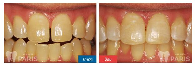 Hàn răng thẩm mỹ đóng kẽ răng thưa BỀN ĐẸP đến 5 năm! 1