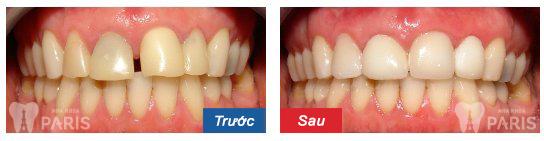 Hàn răng thẩm mỹ đóng kẽ răng thưa DUY TRÌ sau 5 năm5