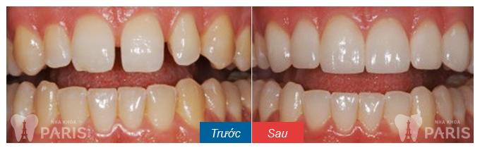 Hàn răng thẩm mỹ đóng kẽ răng thưa DUY TRÌ sau 5 năm1