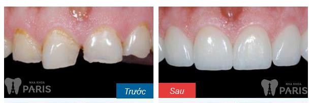 Hàn răng thẩm mỹ đóng kẽ răng thưa DUY TRÌ sau 5 năm6