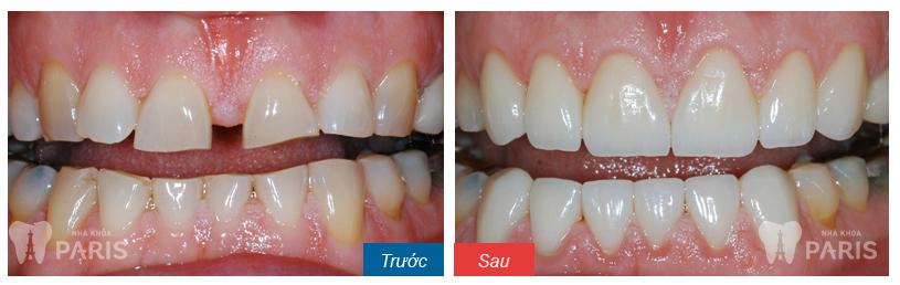 Hàn răng thẩm mỹ đóng kẽ răng thưa BỀN ĐẸP đến 5 năm! 3