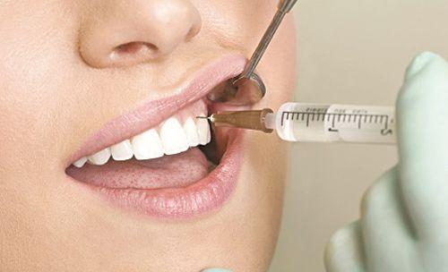 Bí quyết chữa nhức răng siêu rẻ và đơn giản3