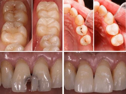 Trám răng thẩm mỹ là gì? Công nghệ trám có độ bền cao nhất 2018 2