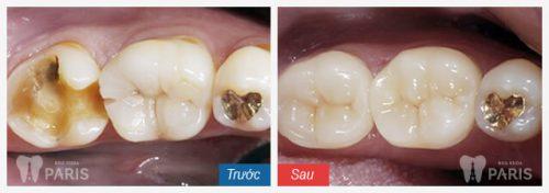 Các bước hàn răng sâu tiêu chuẩn KHÔNG ĐAU - BỀN CHẮC 3