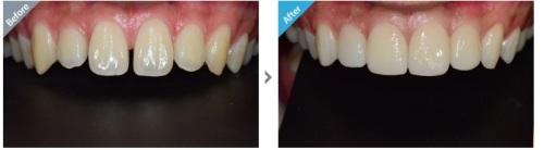 Trám răng thưa có giống trám răng sâu không?3