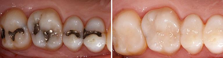 """Chữa sâu răng bằng đu đủ """"rẻ bèo"""" hiệu quả cực nhanh chỉ 30s 1"""