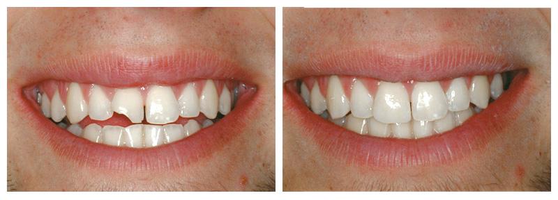 Nguyên nhân răng bị mẻ - Cách chữa NHANH CHÓNG & HIỆU QUẢ 5
