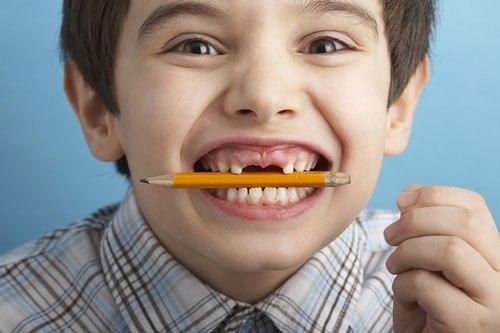 Sâu răng ở trẻ em và cách điều trị triệt để nhất 1