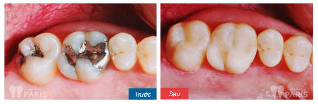 Tổng hợp các cách làm giảm đau răng sâu tốt nhất hiện nay 4