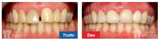 before-after-dental-crowns-03