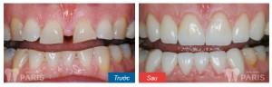 Làm răng hết thưa bằng hàn răng có hiệu quả hay không?