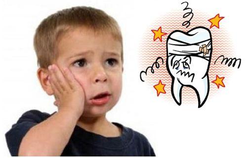 Có cần thiết phải trám răng sữa bị sâu vào tủy không?