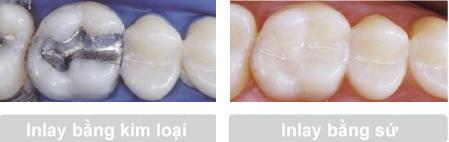 Có nên hàn Inlay/Onlay cho răng sâu hay không?