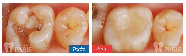 Giá trám răng hàm bị sâu là bao nhiêu tại nha khoa Paris?