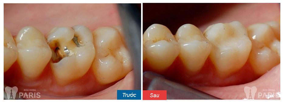 """""""Bật mí"""" Răng sâu nên làm gì khỏi HOÀN TOÀN và KHÔNG tái phát? 4"""