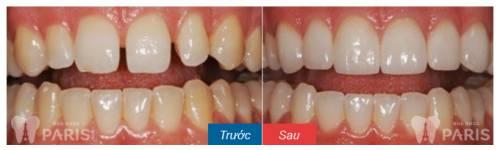 Trám khe răng thưa mất thời gian bao lâu thì HOÀN THÀNH? 2