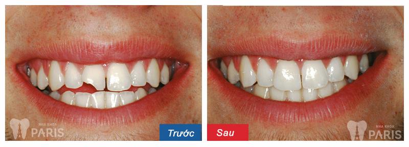 Sứt răng cửa làm thế nào để điều trị thưa bác sỹ?
