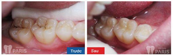 """Bị sâu răng uống thuốc gì hỗ trợ điều trị hiệu quả """"Triệt Để 100%"""" 2"""