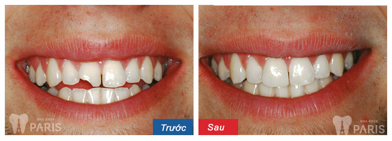 Trám răng thẩm mỹ có bền không? Cách Tăng tuổi thọ răng trám TỐT 1