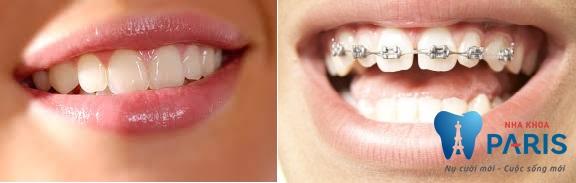 4 Cách làm khít răng cửa bị thưa mà bạn không nên bỏ qua 1