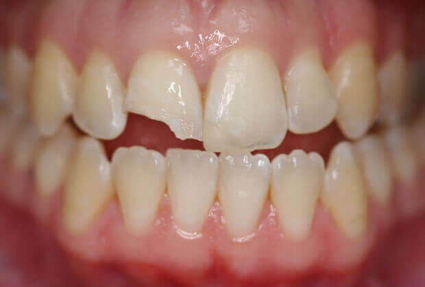 Kết quả hình ảnh cho Thực ra, tình trạng mòn răng và mẻ răng