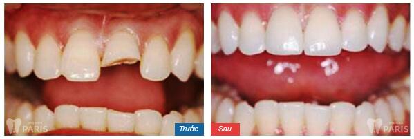 Mẻ răng có sao không, liệu có điềm gở gì không? 2