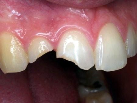 TOP 3 Cách phục hồi răng cửa bị mẻ được YÊU THÍCH NHẤT 2018 1