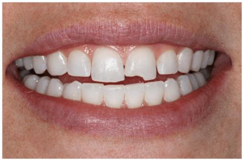 Răng bị mẻ làm thế nào phục hồi nhanh và thẩm mỹ nhất?