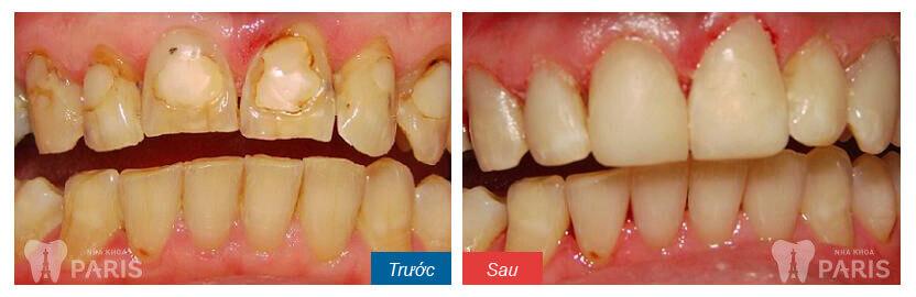 Chi phí trám răng thẩm mỹ bao nhiêu tiền? Bảng giá chuẩn nhất T8/2017 5