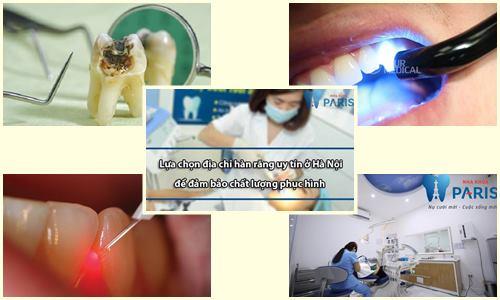 Có NÊN hàn răng bị vỡ hay không ? 1