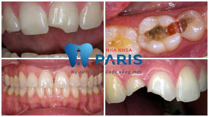 Công nghệ trám răng Laser Tech TIÊN TIẾN & HIỆN ĐẠI số 1 12