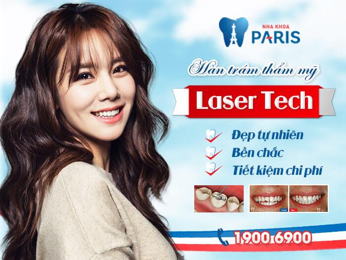 Công nghệ Laser Tech hạn chế tối đa những xâm lấn đến cấu trúc răng