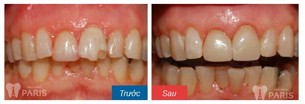 Trám răng bị vỡ hiệu quả BỀN - ĐẸP với quy trình CHUẨN QUỐC TẾ 3
