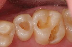 """""""Đánh bay"""" răng sứt, mẻ với ưu điểm hàn trám răng Laser Tech"""