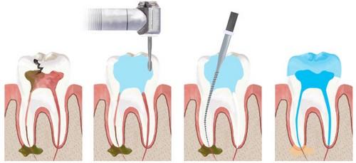 Trám răng lấy tủy giá bao nhiêu tiền là CHUẨN và HỢP LÝ nhất? 2