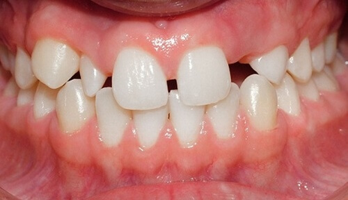 Vì sao răng bị thưa và cách khắc phục chỉ TRONG 3 NGÀY! 1