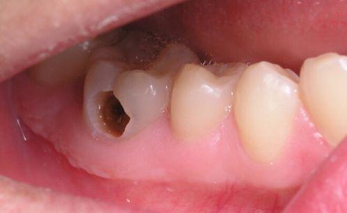 Địa chỉ Nha Khoa chữa răng sâu tốt nhất uy tín nhất tại Hà Nội 1