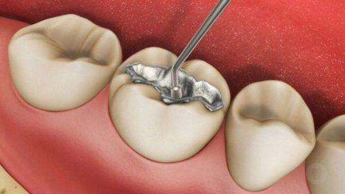 Trám răng sâu vĩnh viễn có được không?